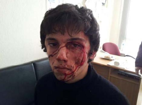 """Les photos sont pris pendant son arrestation """"musclée"""" en 01/02/13"""